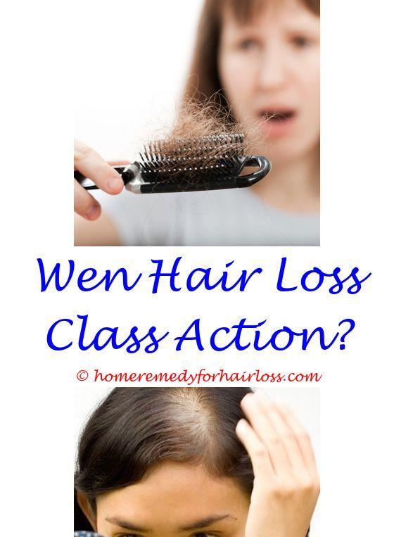 Extreme Hair Loss | Hair loss, Hair loss treatment and Male hair loss