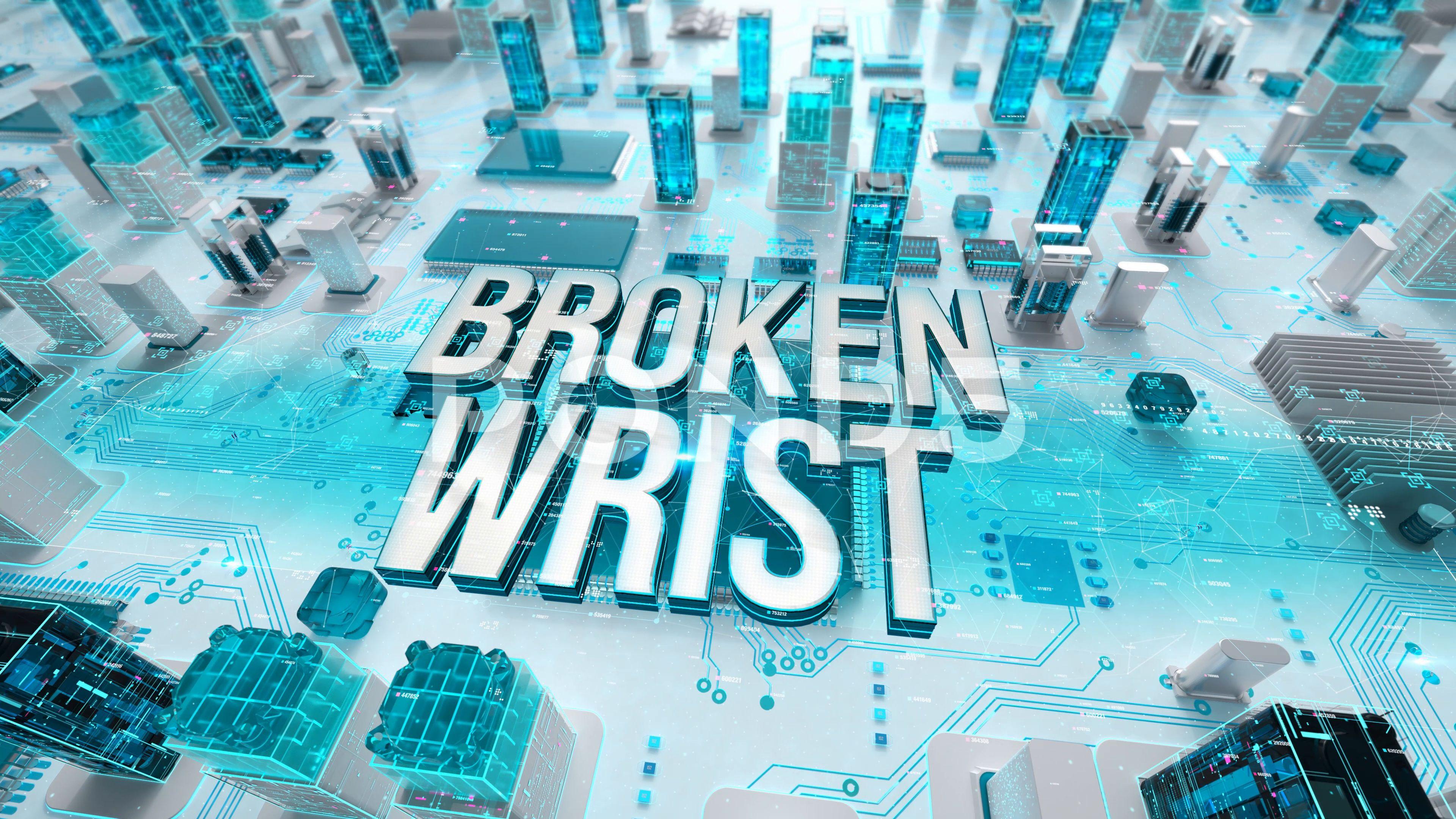 Broken Wrist with medical digital technology concept Stock