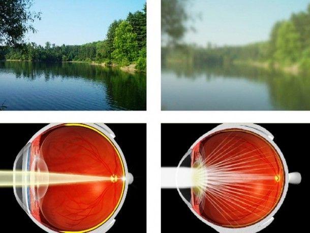 Народные средства лечения катаракты | здоровье | Pinterest | Здоровье