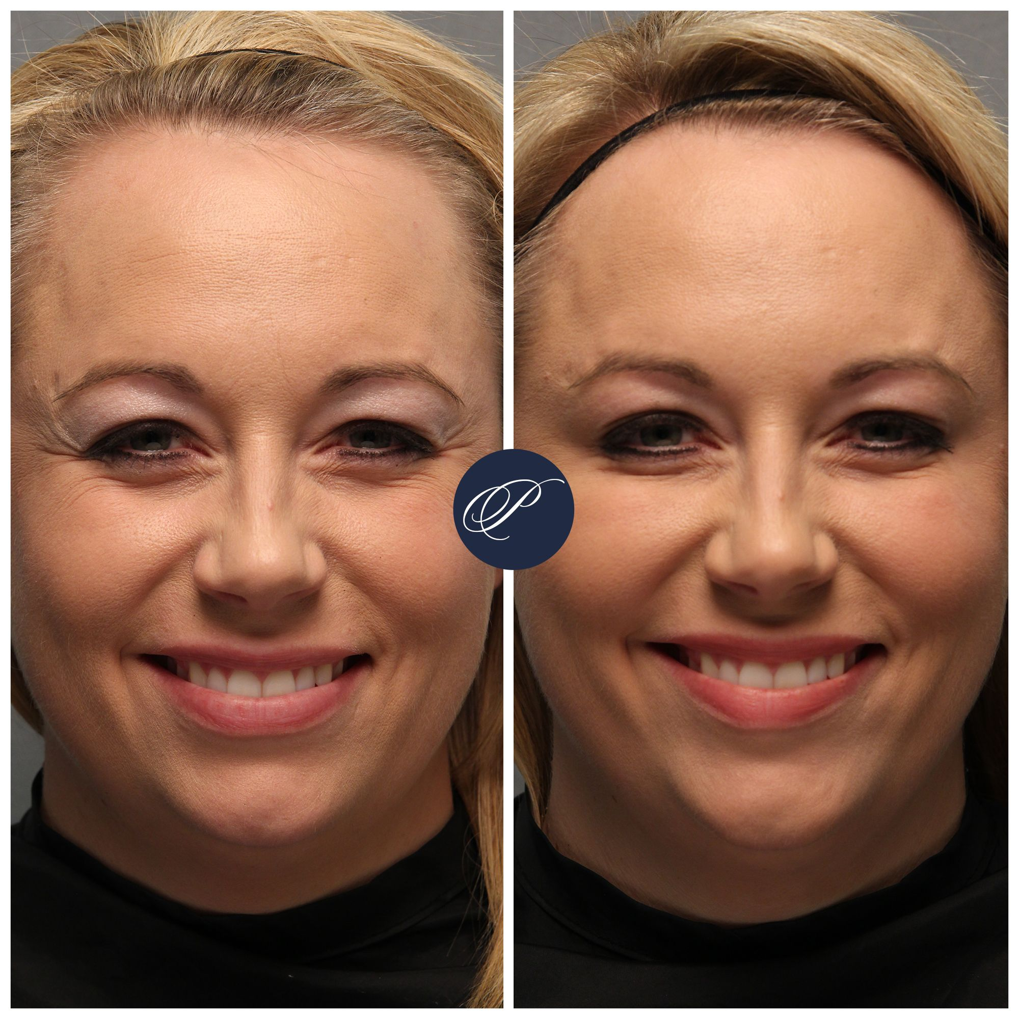 Injectable treatments are a beautiful thing for restoring