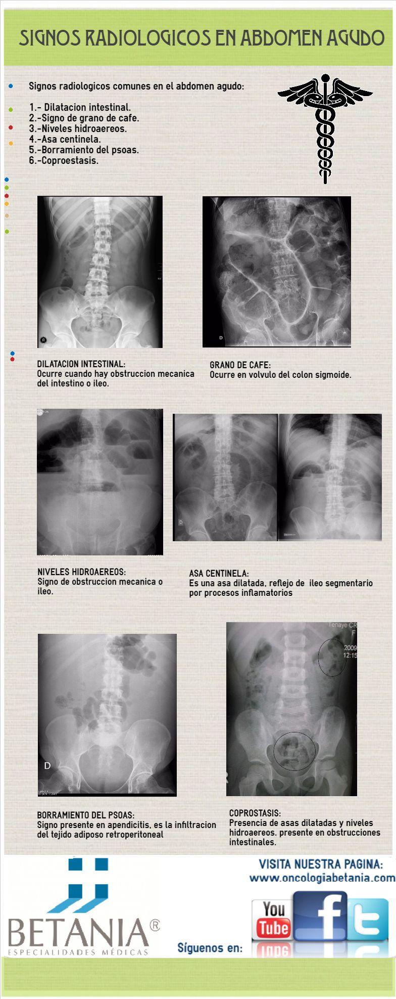 Infografía sobre signos radiológicos en abdomen agudo. Dr Ramírez ...