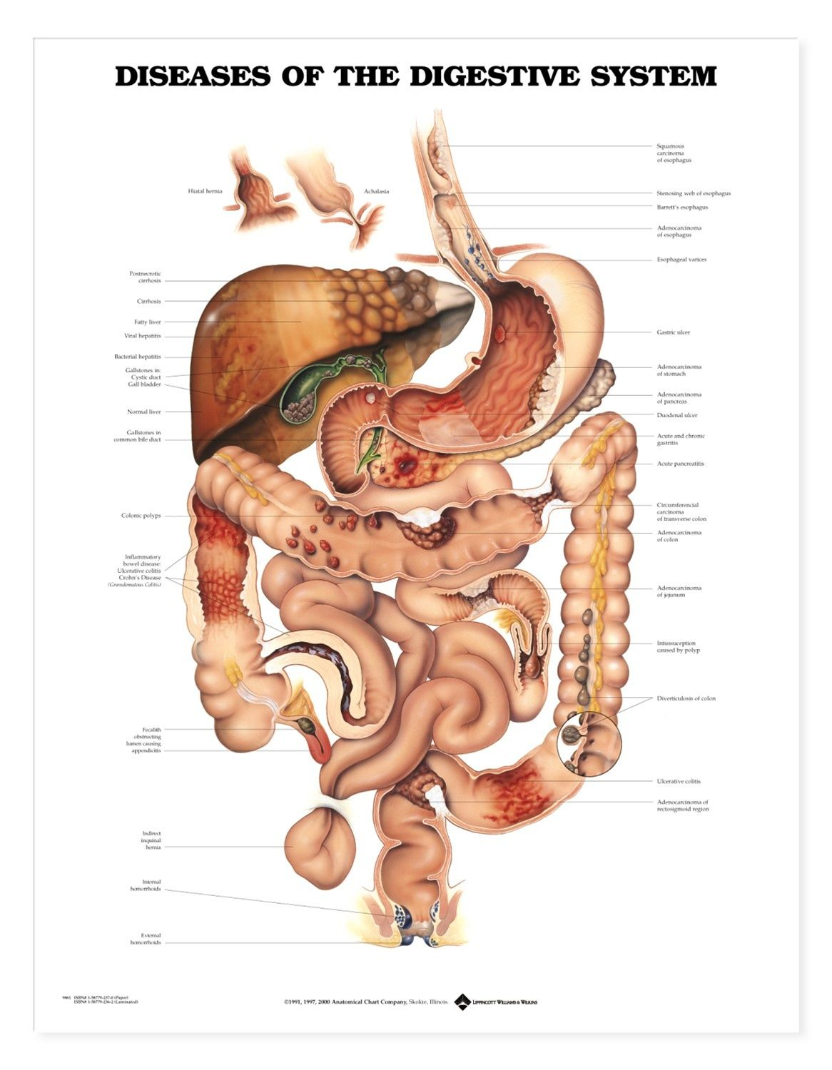 Digestive System Chart Stomach Anatomy Poster 9781587790065