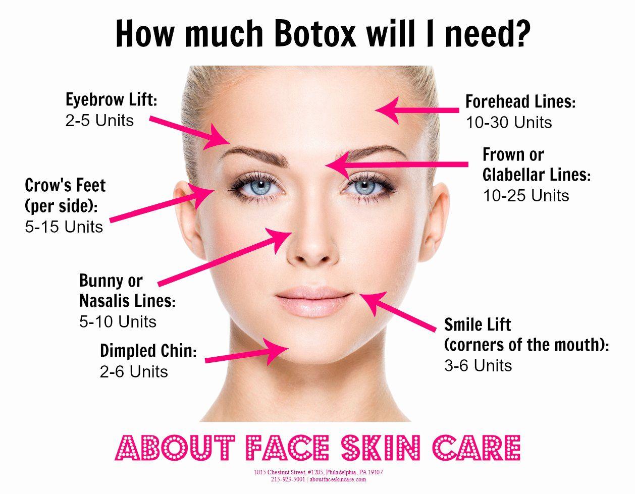 botox injection sites face diagram dermatology botox botox injection sites face diagram [ 1258 x 979 Pixel ]
