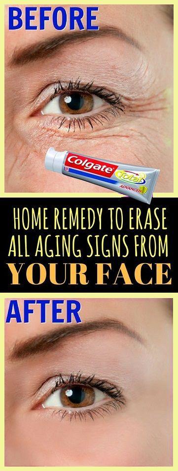 That's incredible! This Simple Home Remedy can Erase All Aging Signs Easily! That's incredible! This Simple Home Remedy can Erase All Aging Signs Easily!#exercisebenefits