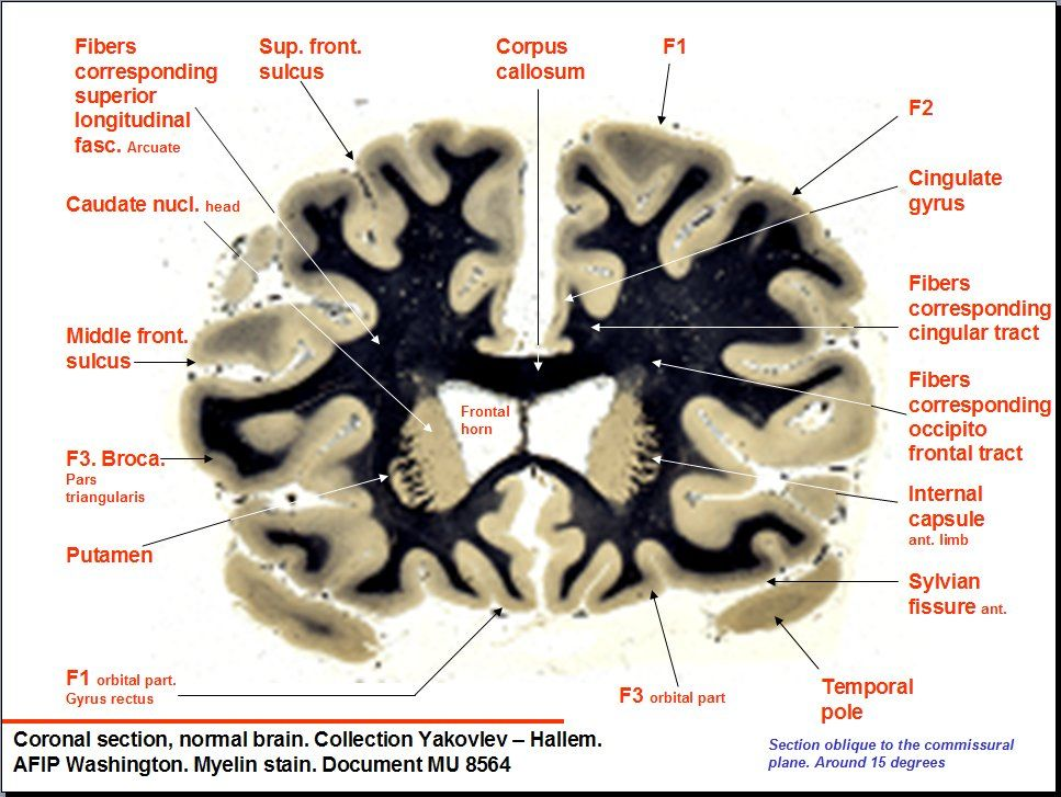 Pin by Sommer Thorgusen on Brains... | Pinterest | Brain, Johns ...
