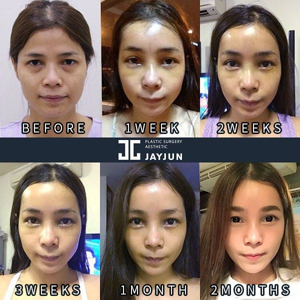 korea eye lifting korea droopy eyelid surgery korea double