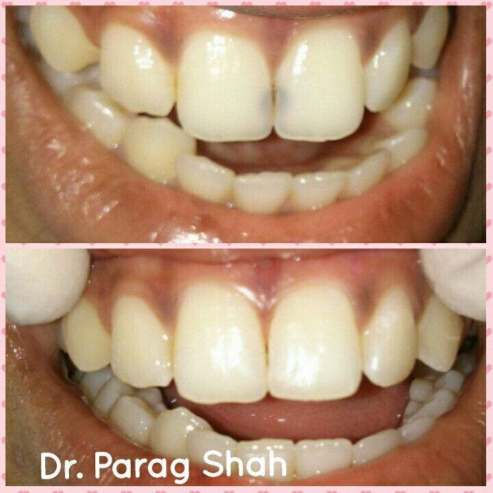 Creating smiles front teeth black spot decay