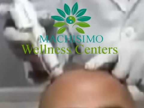 Hair Loss Treatment By Machisimo Wellness Centers