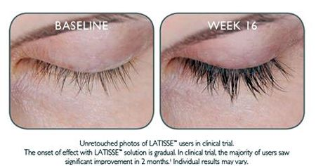 0e46b6d2496 Now, you can grow longer, fuller darker lashes. IT'S NOT AN ILLUSION. IT'S  YOUR OWN EYELASHES - ONLY BETTER