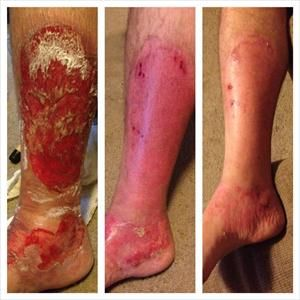 Do you know anyone with burns (including 1st and 2nd degree), scars, cellulite, stretch marks, ant bites, age spots etc.?  #DefiningGel will help!   The man in this picture had 2nd degree burns; after his wounds have closed, he applied defining gel on his leg.  1st pic: wounds closed 2nd pic: after 2 days using defining gel  3rd pic: nearly two weeks later