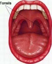 Healthy Throat – Tonsils Check your throat reg… | Healthy Mouth ...