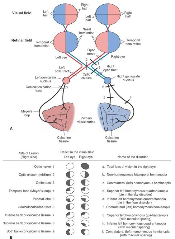 Deficits After Lesions In The Visual Pathways Neurology Sensory