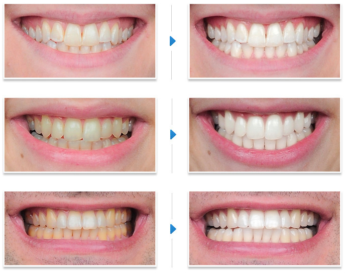 Low Cost Dental Care In Florida Dental Teeth Whitening