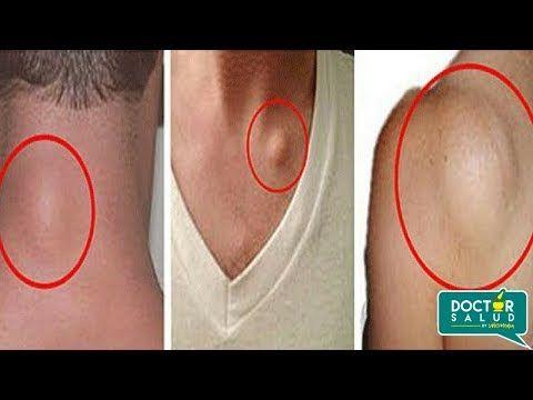 Elimina Los Lipomas O Bolas De Grasa Sin Importar Donde Esten Localizados En Solo En 7 Dias Youtube Psoriasis Treatment What Is Psoriasis Skin Bumps