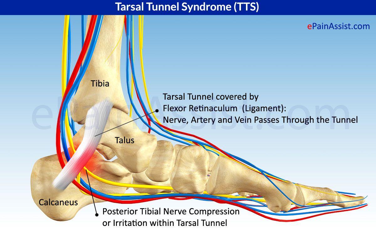 Tarsal Tunnel Syndrome (TTS) or Posterior Tibial Neuralgia ... Tarsal