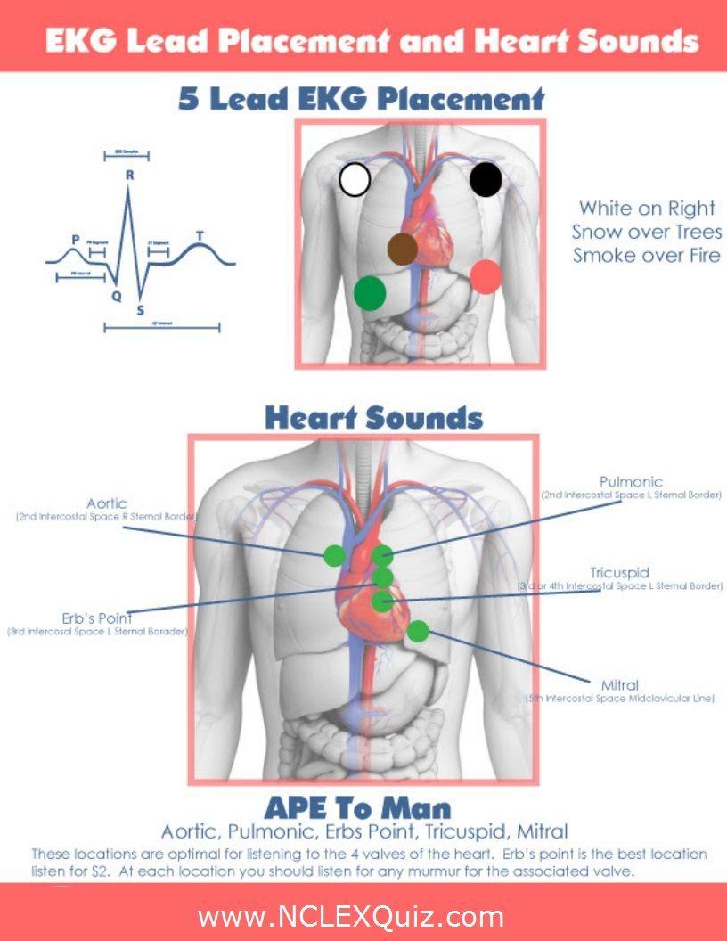 5 Lead EKG Placement and Heart Sounds | Ekg placement, Ekg ...