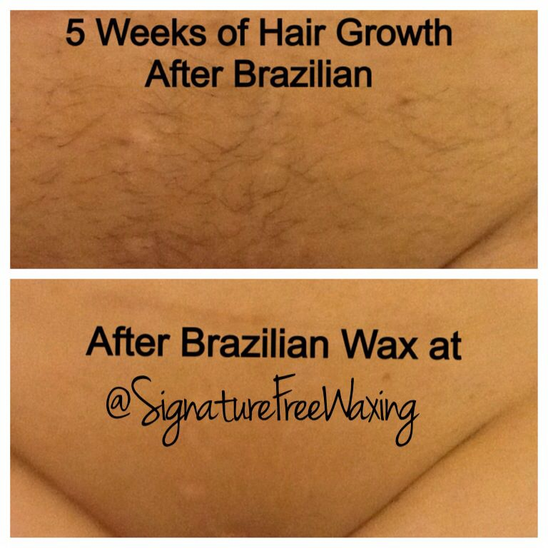 Dangers of a brazilian bikini wax