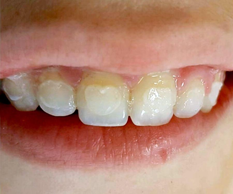 removendo-cimento-ortodontia