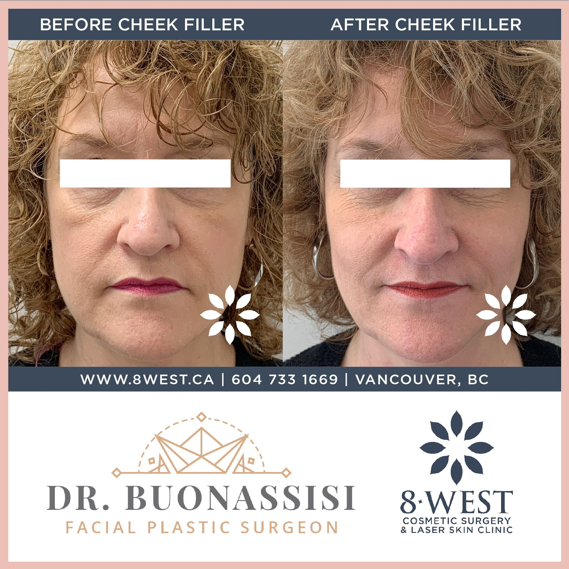 This Wonderful Patient Had Initially Visited For A Surgical Solution To Her Slight Malarbags But Our Tag Team O In 2020 Laser Skin Clinic Cheek Fillers Botox Fillers