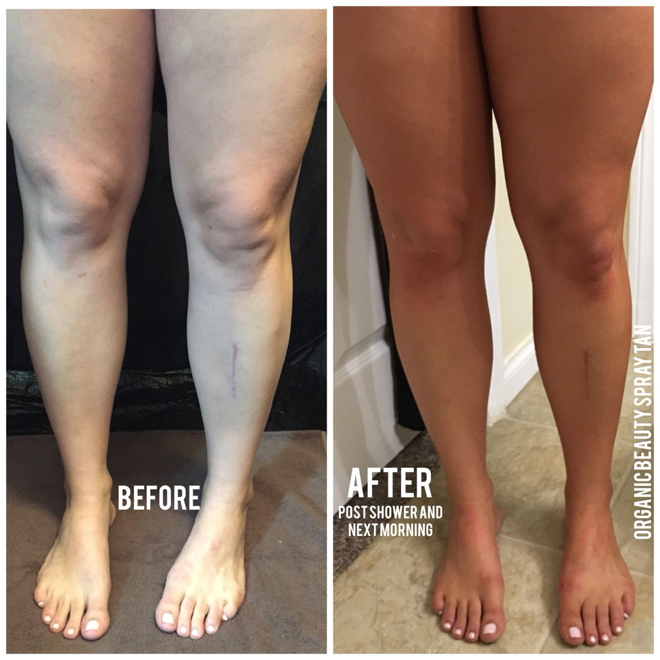 Before And After Tan Spray Tan Tips Spray Tan Solution Best Tanning Lotion