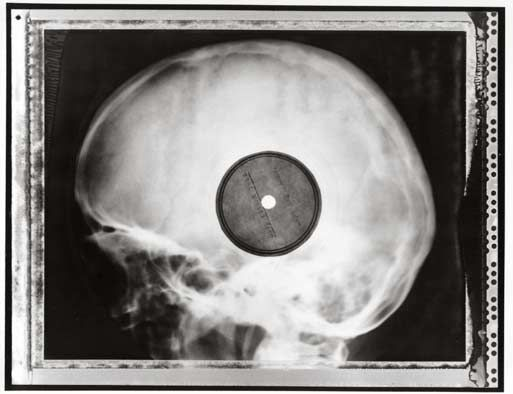 Bootleg Records Made From Discarded X-rays (via Paste Magazine)