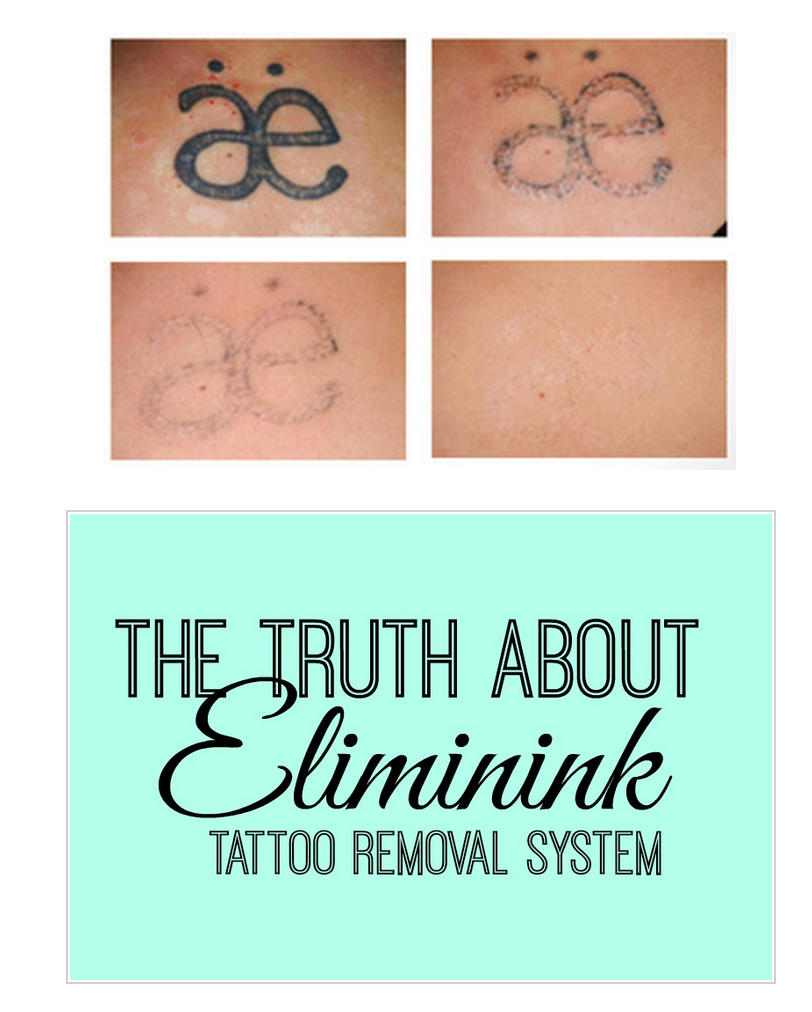 Are You Scared Of Laser Tatoo Removal Eliminink Is A Non Laser