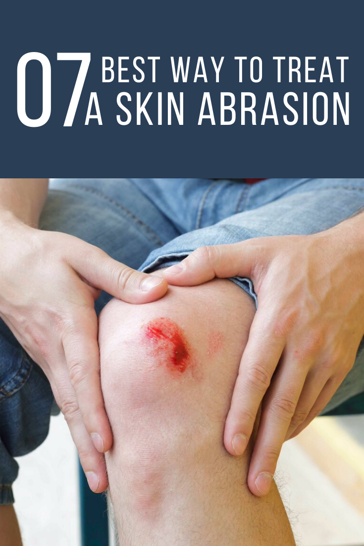7 Best Way To Treat A Skin Abrasion With Home Remedies Home Remedies For Skin Health And Fitness Tips Skin