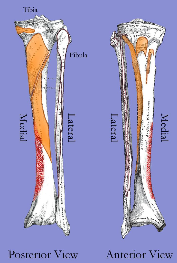 Running Writings Injury Series Medial Tibial Stress Syndrome Shin Splints As A Bone Inj Tibial Stress Syndrome Medial Tibial Stress Syndrome Shin Splints