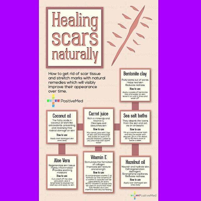 healing scars naturally #hidradenitissuppurativacure #treatment