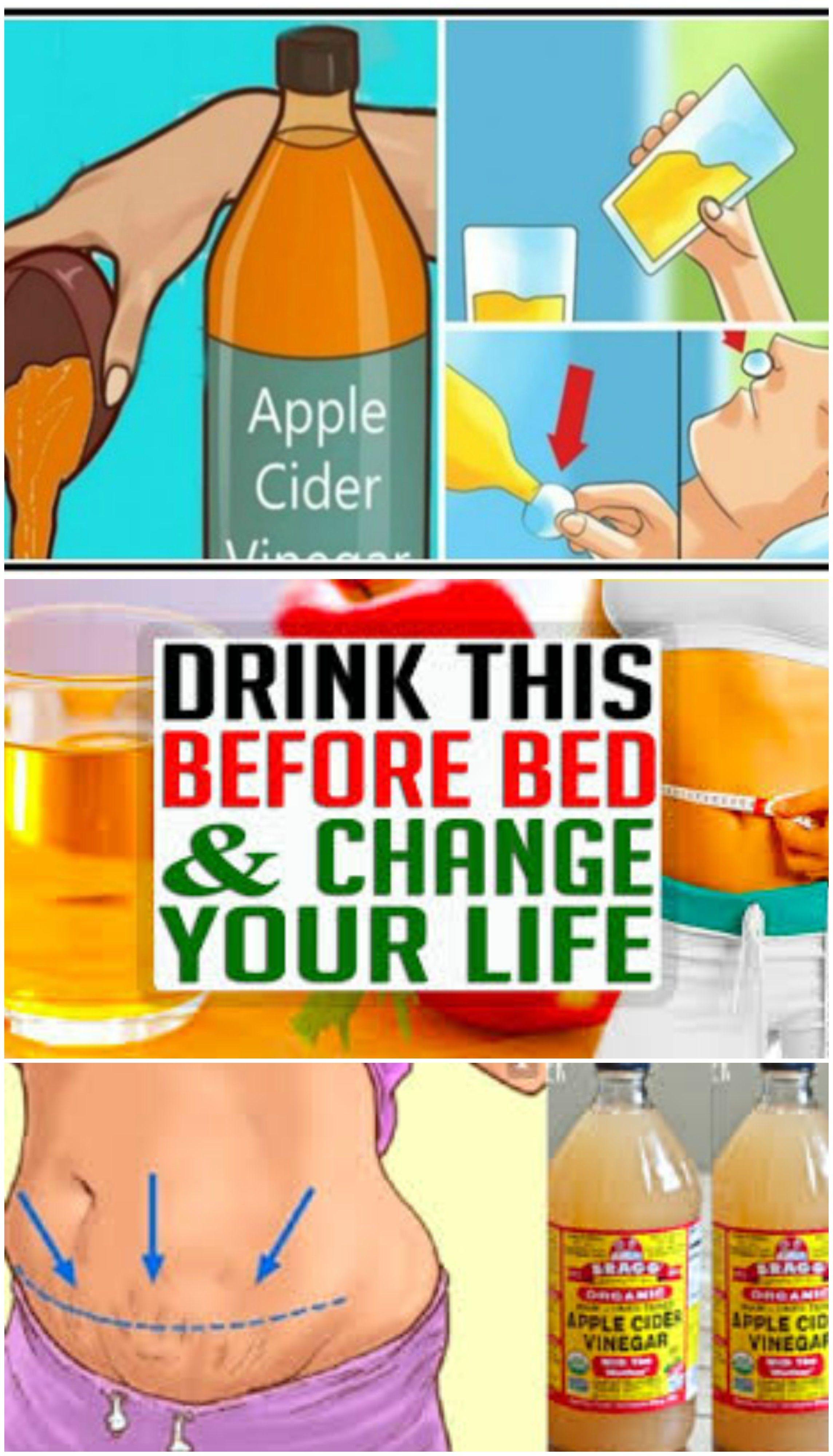 DRINKING APPLE CIDER VINEGAR BEFORE BEDTIME WILL CHANGE