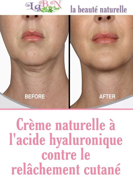 Crème Naturelle à L Acide Hyaluronique Contre Le Relâchement Cutané Relâchement Cutané Hyaluronique Acide Hyaluronique