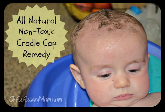 All Natural Non Toxic Cradle Cap Remedy Cradle Cap Remedies Baby Cradle Cap Cradle Cap