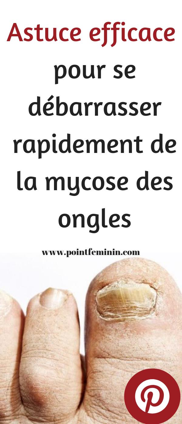 La médecine moderne traite les champignons des ongles avec des traitements topiques, des ...