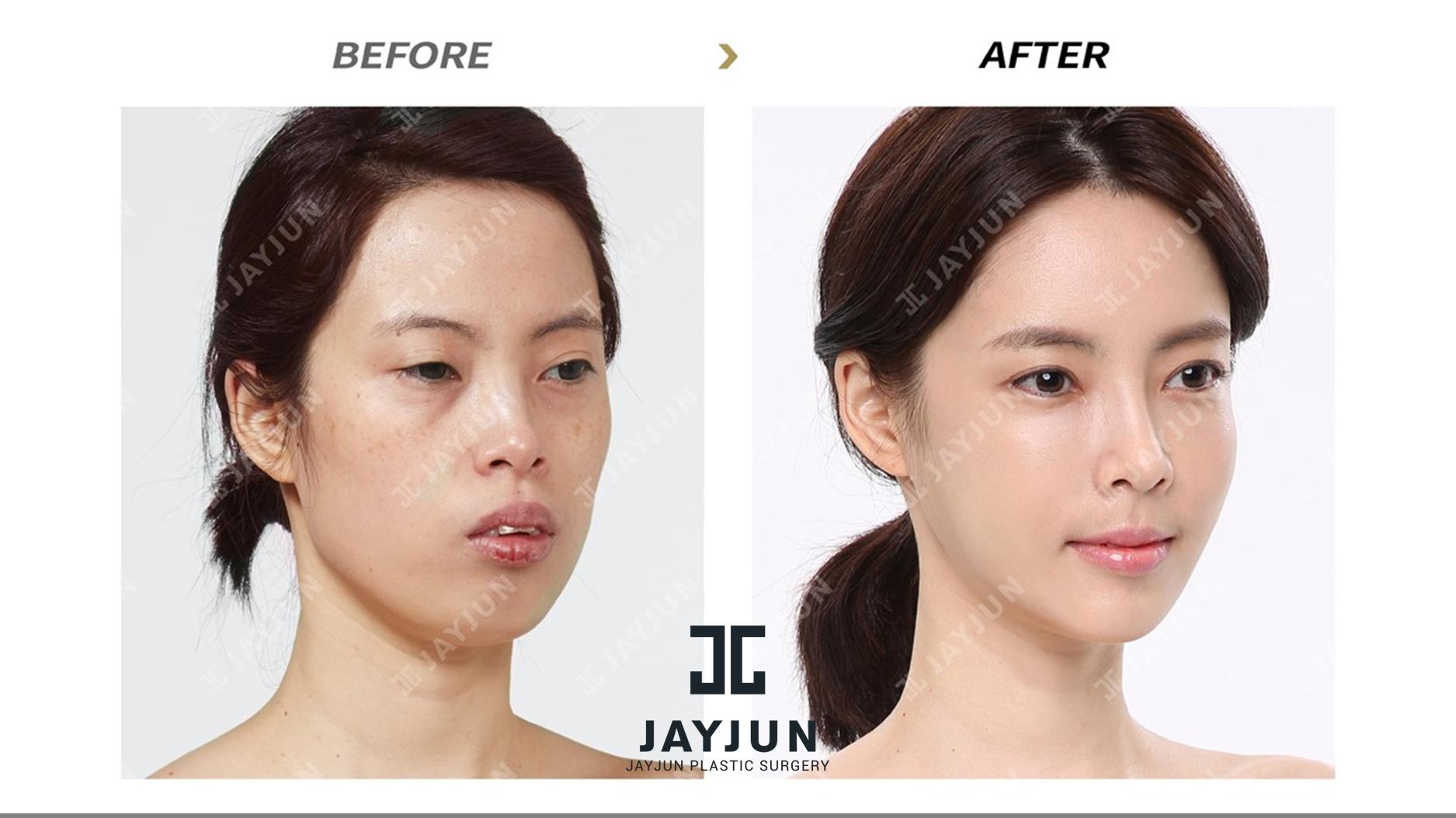 Korean Plastic Surgery Korea Cosmetic Surgery Korean Plastic Surgery Before And After Cosmetic Sur Plastic Surgery Korea Korean Plastic Surgery Plastic Surgery