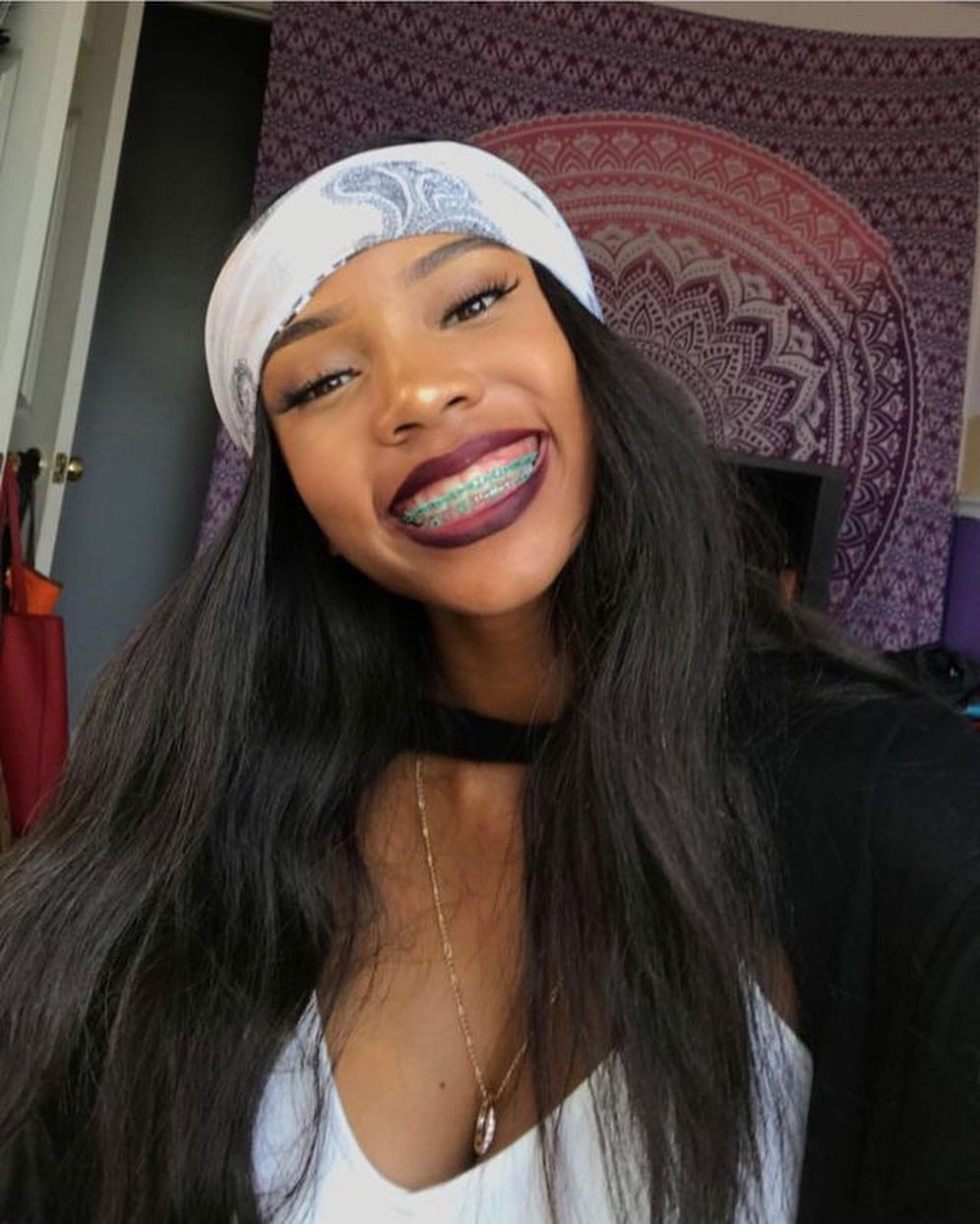 Braces Appreciation Post  Fantasia  Poppin Makeup In -8773