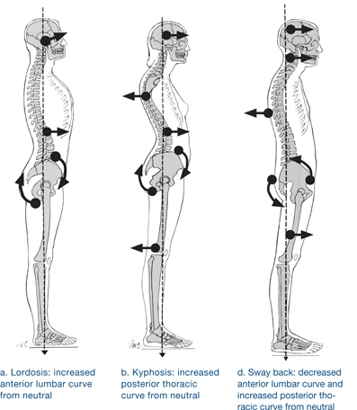 Stand up straight! And pay attention to your posture