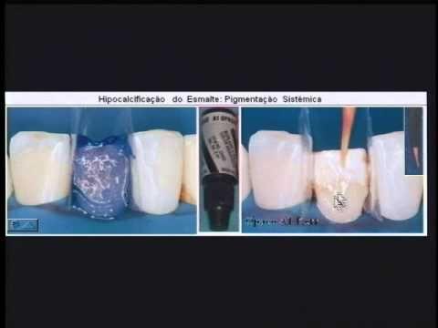 Como obter sucesso nas restaurações de resina composta anteriores - Dr. Moacyr Menendez - YouTube