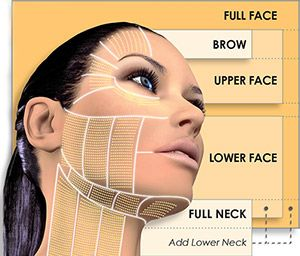 Tech Neck Botox