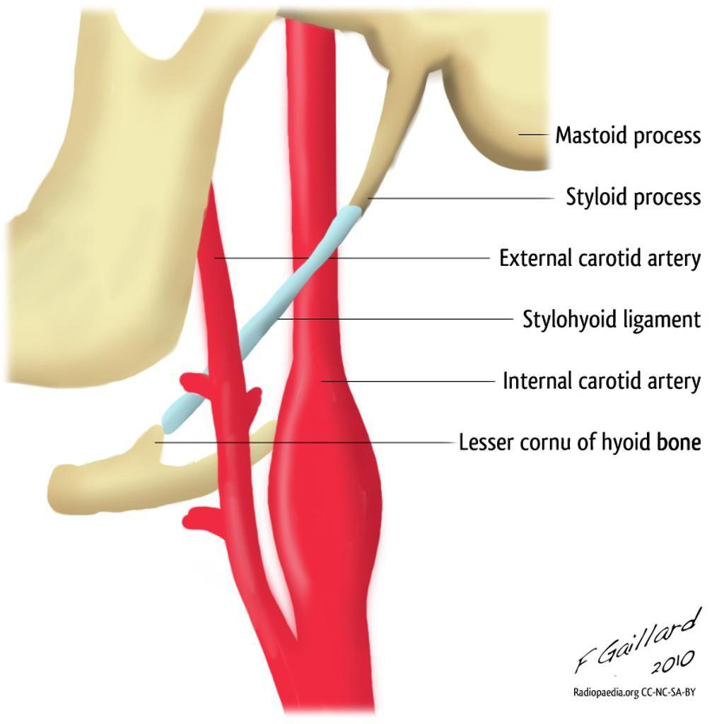 Styloid Apparatus Diagram Radiology Case Radiopaedia Org Radiology Teeth Shape Syndrome