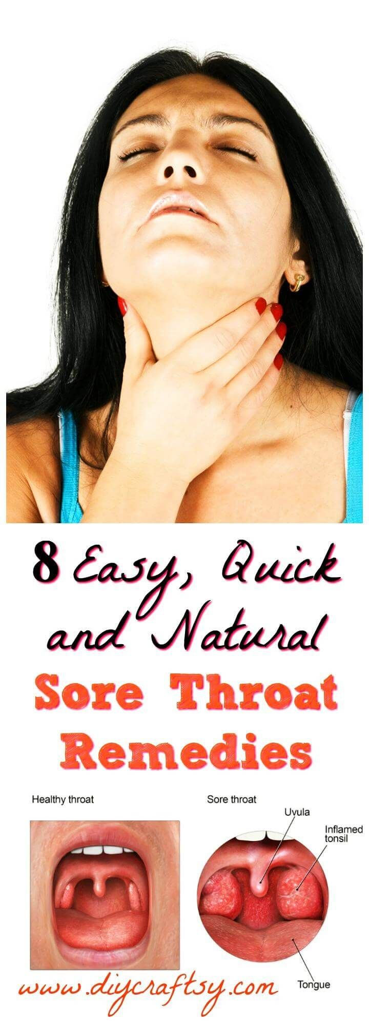 8 Easy, Quick and Natural Sore Throat Remedies (With