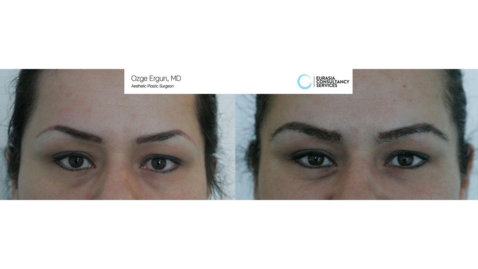 Eyebrow Transplant Surgery Ozge Ergun Md Https