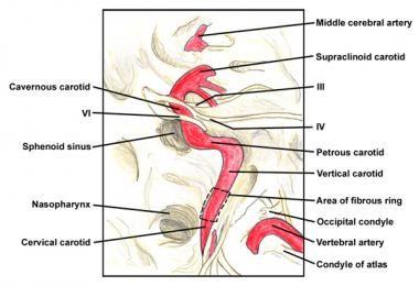 Intracranial course of the internal carotid artery | SELLA TURCİCA ...