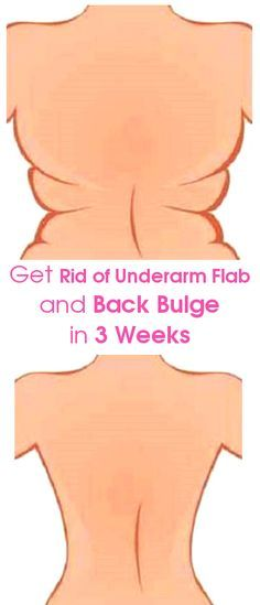 The Underarm Flab and Back Bulge distorts the body shape of many women. It also makes it very uncomfortable wearing a bra. Many, people have tried dieting to no avail. The surest and the most effectiv