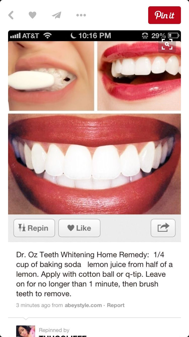 Pin by diy teeth whitening on teeth whitening pinterest