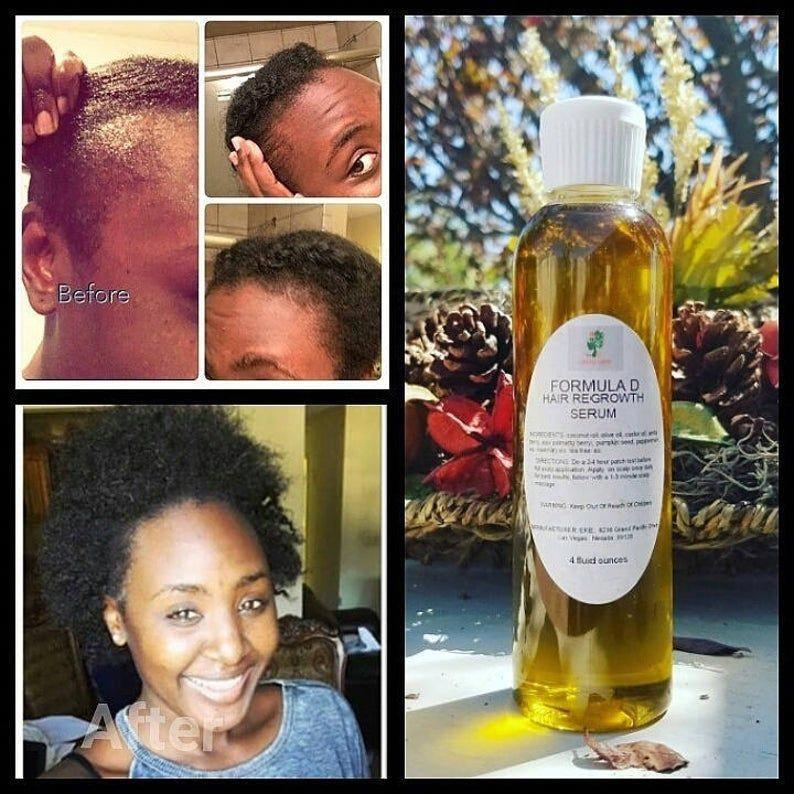 Exuberant black women hair loss Get More Info Here in 2020