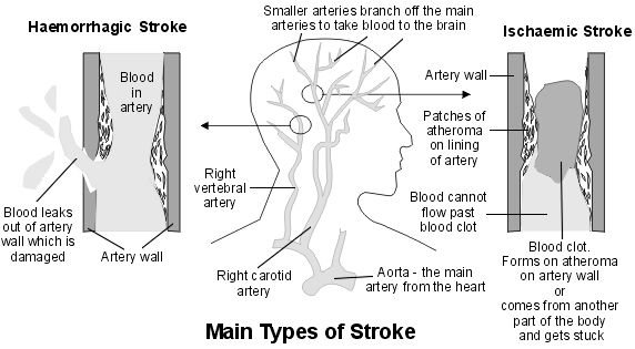Stroke brain blood vessels and medicine cross section diagram showing main arteries of the brain and the main types of ccuart Image collections