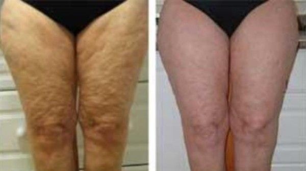 Treat Legs Cellulite With Derma Roller Make Me Over