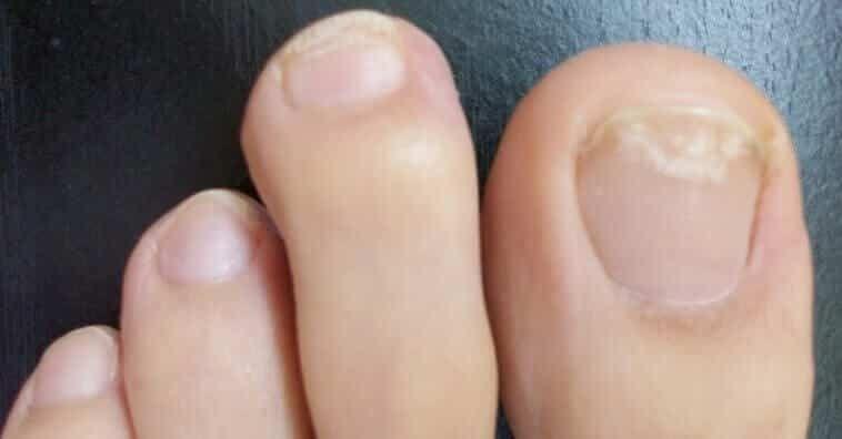 remedio para uñas de las manos con hongos