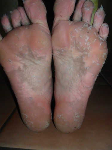 A DIY Peel for Dry, Cracked Feet   Foot