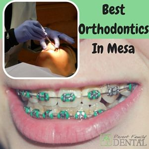 Hiring The Best Orthodontics In Mesa